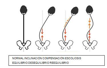 Las infracciones de la lordosis lumbar