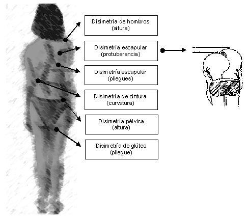 El ejercicio para la espalda kifoz el vídeo