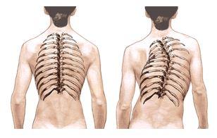 El ejercicio de la encorvadura del cuello