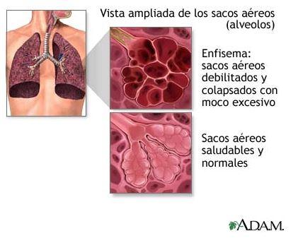 Enfermedad pulmonar obstructiva cronica pdf 2020