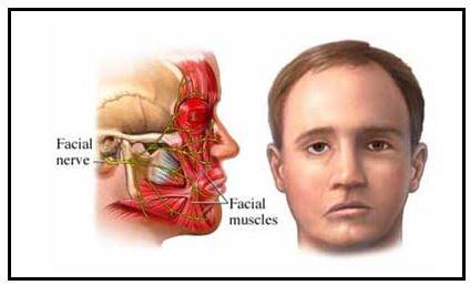 http://www.efdeportes.com/efd199/paralisia-facial-de-bell-e-estrategias-de-intervencao-01.jpg