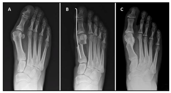 Hallux Valgus Physical Therapy Treatment